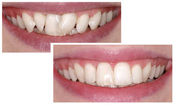 Adult-Cosmetic-Orthodontics-Des-Moines