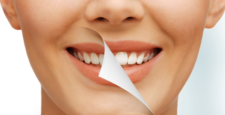 Best Cosmetic Dentistry Des Moines