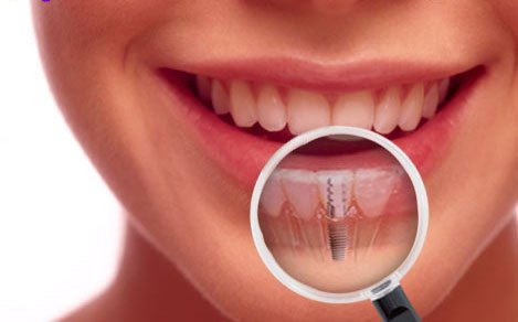 Dental Implants Des Moines IA
