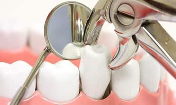 Tooth Extractions West Des Moines