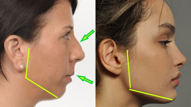 Jaw And Facial Development In Adults Apex Dental Dentist Des Moines Iowa